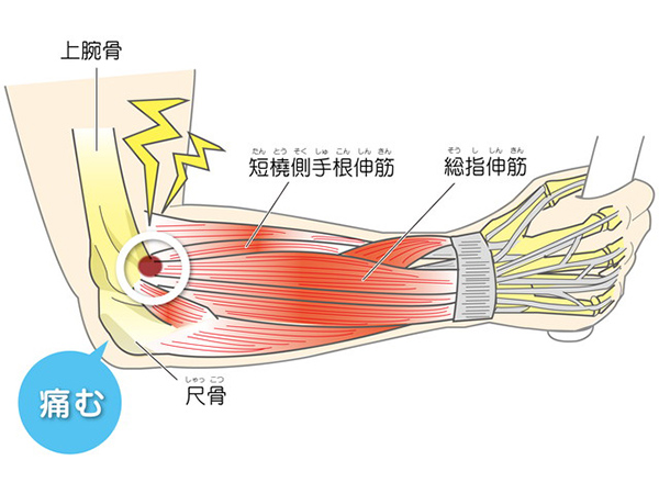 画像:テニス肘(上腕骨外側上顆炎)
