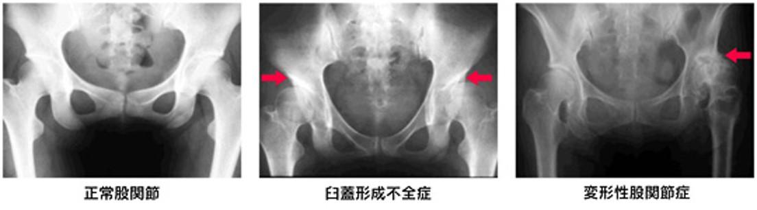 画像:変形性股関節症・臼蓋形成不全症