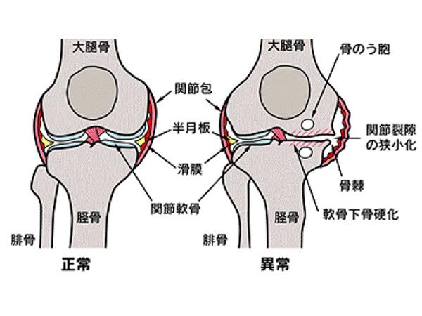 画像:変形性膝関節症