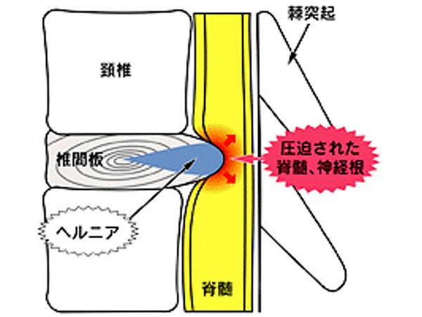 画像:頚椎椎間板ヘルニア