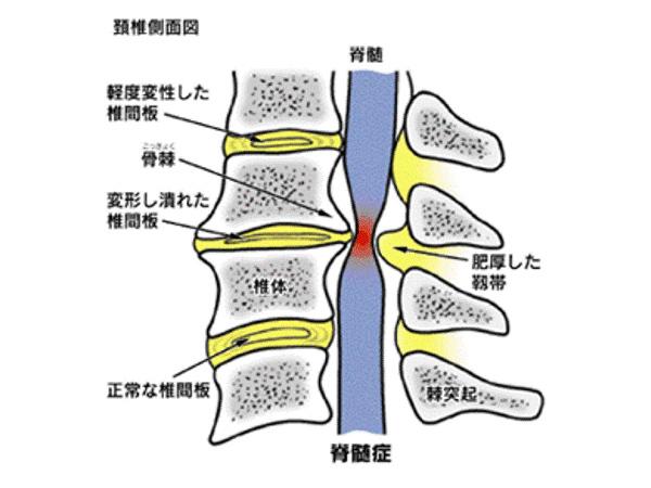 画像:頚椎症性脊髄症