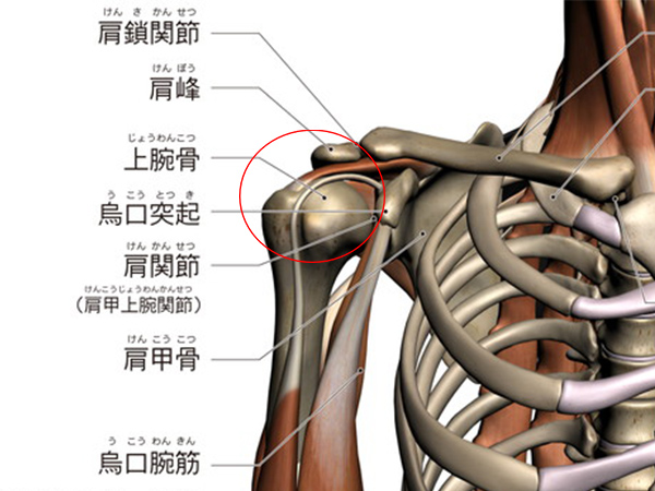 画像:五十肩(肩関節周囲炎)