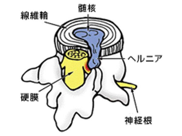 画像:腰椎椎間板ヘルニア